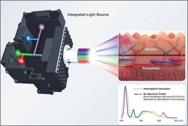 Fujifilm uvádí ELUXEO(TM) – nový endoskopický systém