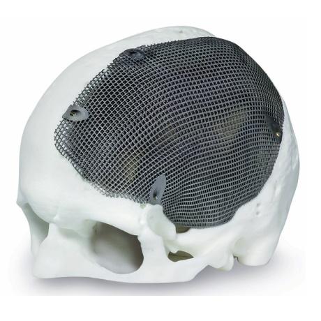 3D kovový tisk pomáhá zlepšovat lebeční a obličejovou chirurgii
