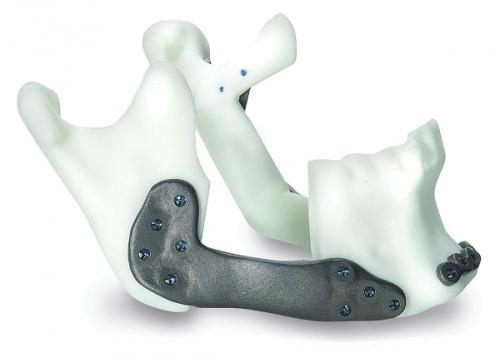 Přesně napasovaná individuální sestava implantátů