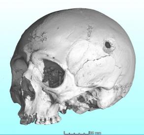 Vědci z CEITEC VUT využívají microCT i k vyšetřování střelných zranění na lebce
