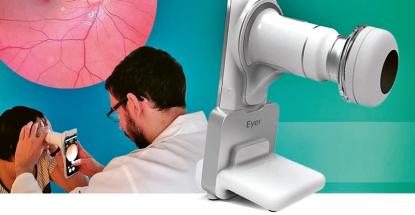 Pro vyšetření nejsou nutné žádné kapky zvětšující sítnici či podobné přípravky. Kompletní pořízení snímků sítnice pacienta pro vyšetření oftalmologem přitom trvá méně než minutu.
