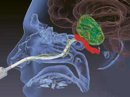 S odsávačkou s tvarovou pamětí je možné přes nos odstranit i nádor mozku