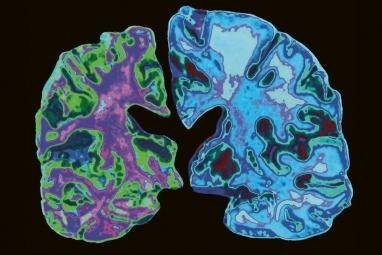 Sken zdravého mozku v porovnání s mozkem nemocného Alzheimerovou chorobou Foto: Jessica Wilsonová / Science Photo Library