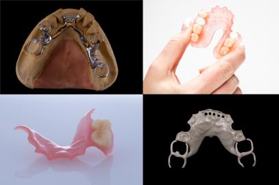 Zubní náhražky jsou díky svým drobným rozměrům a vysoké míře nutné customizace podle individuálních potřeb jednotlivých pacientů doslova předurčeny k výrobě pomocí 3D tisku /Zdroj: Arfona LLC/