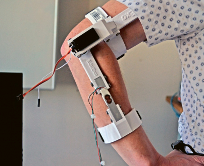 Na liberecké mechatronice kompletně vyrobili 3D vytištěnou dětskou protézu