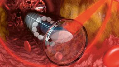 Znázornění funkce endoskopu při průchodu tepnou /Foto: Sterltech Optics/