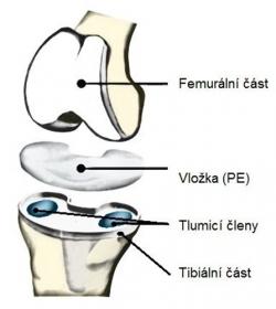Celková sestava kloubního implantátu /Foto: archiv ÚST FSI/