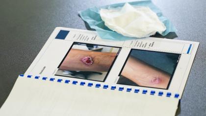Stav ruky po popálenině a po aplikaci kožního krytu pomoci nanovláken