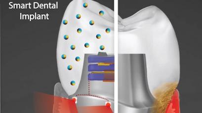 Pokročilý zubní implantát generuje elektřinu a léčí dáseň