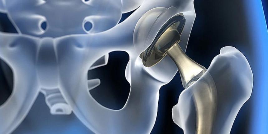 Kvůli opotřebení nebo uvolnění je třeba i umělý kyčelní kloub vyměnit
